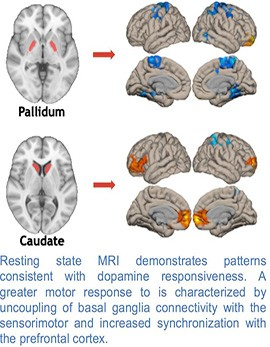 prediction of patient response to dopamine
